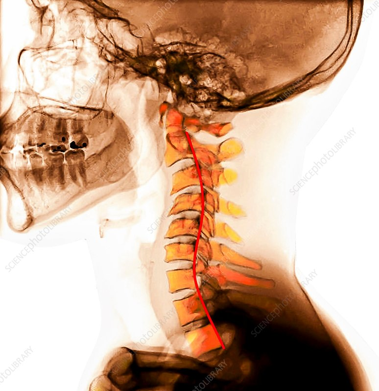 Kyphosis of the cervical spine, X-rays