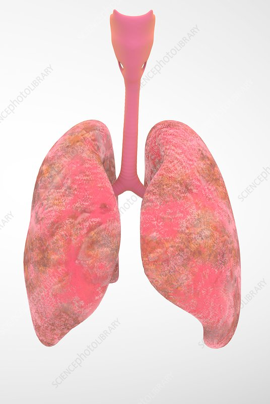 Smoker's lungs, illustration