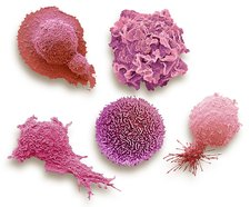 Cells from cancers with highest mortality rates, SEM