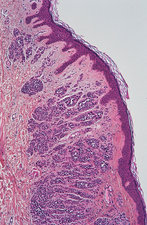 Benign cutaneous nevus, light micrograph