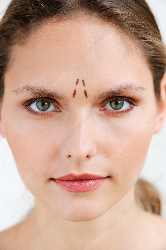 Woman marked for plastic surgery