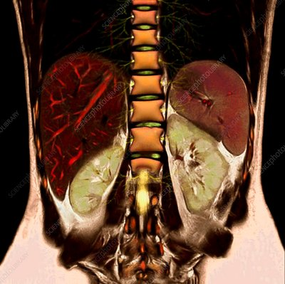 Abdominal organs and spine, MRI scan