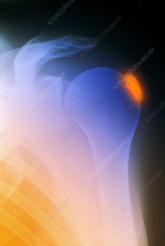 Tendinitis, X-ray