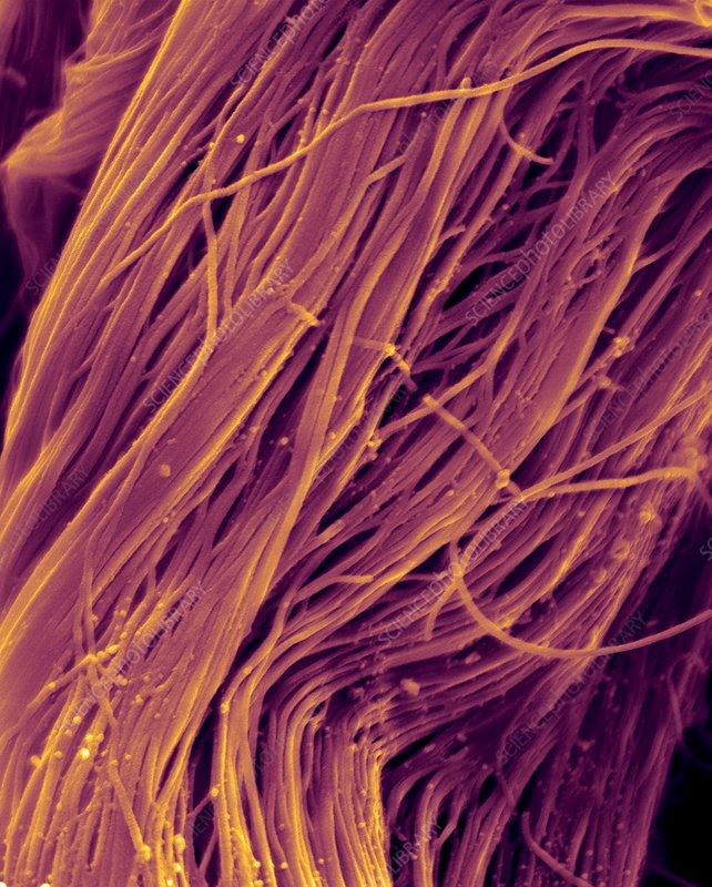 Heart muscle collagen fibres, SEM
