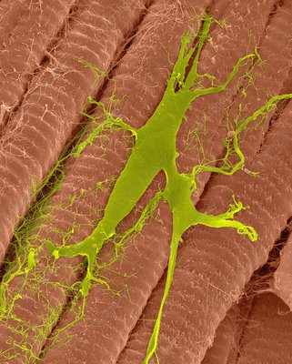 Heart muscle with purine fibres, SEM