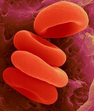 Red blood cells in the Rouleau formation, SEM