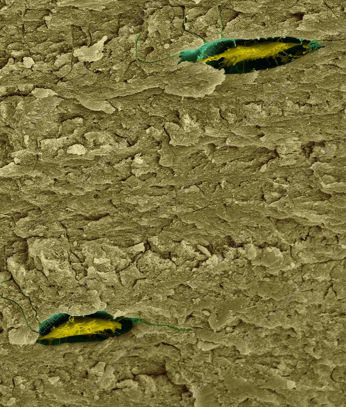 Bone cells (osteocytes) in compact bone, SEM