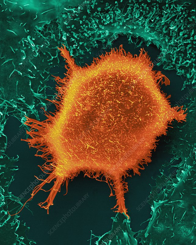 Lung epithelial cancer cell, SEM