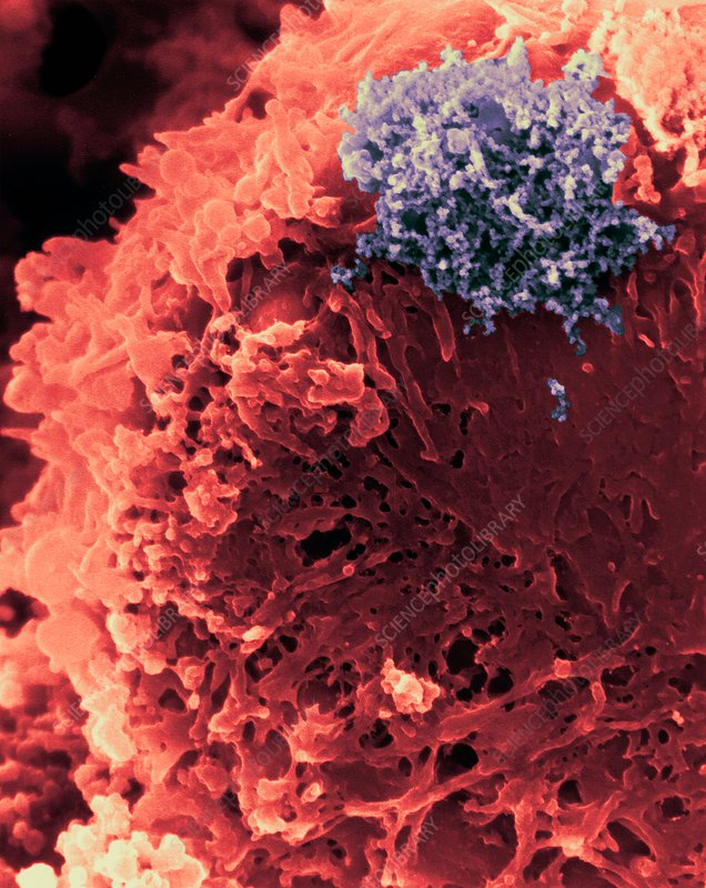 T lymphocyte with HTLV-1 infection, SEM