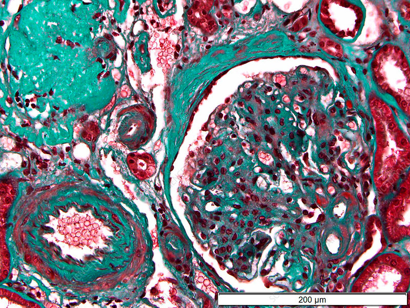 Glomerulosclerosis in diabetes, light micrograph