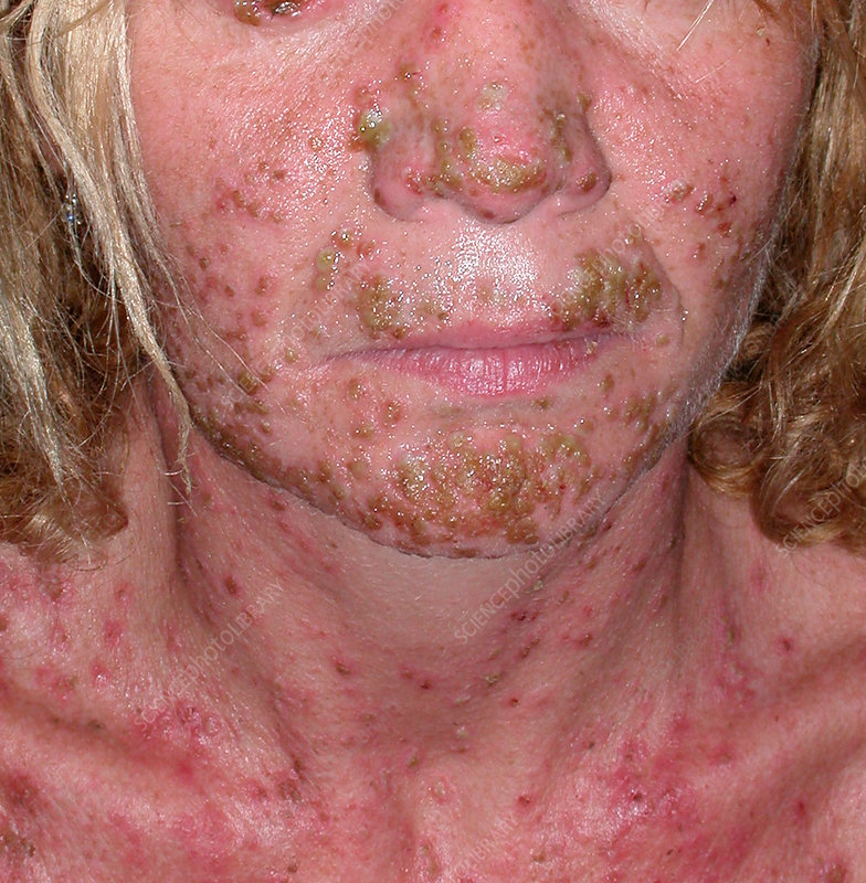 Herpes infection in epidermolytic hyperkeratosis
