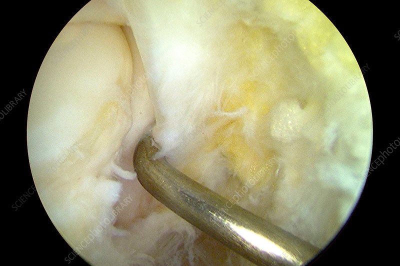 Normal left ankle, arthroscopic view