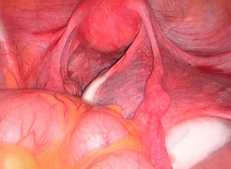 Endometrial cyst, laparoscopic view