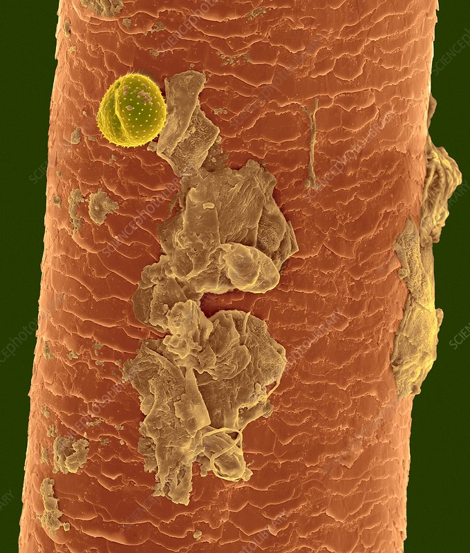 Nose hair with pollen grain, mucus, dead skin, SEM