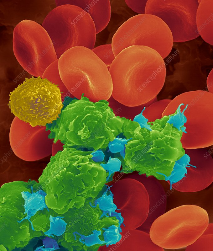 Red blood cells, white blood cells and platelets, SEM