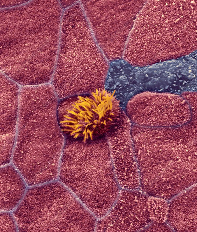 Nasopharynx epithelial surface, SEM