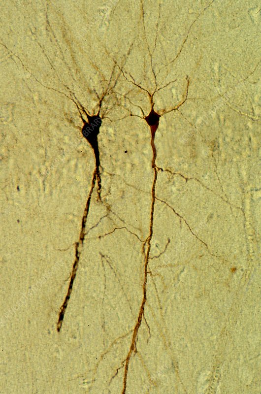 Hippocampus pyramidal neurons, LM Brightfield