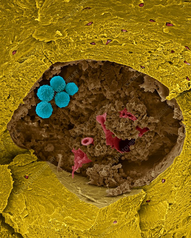 Human stem cells in bone marrow cavity, SEM