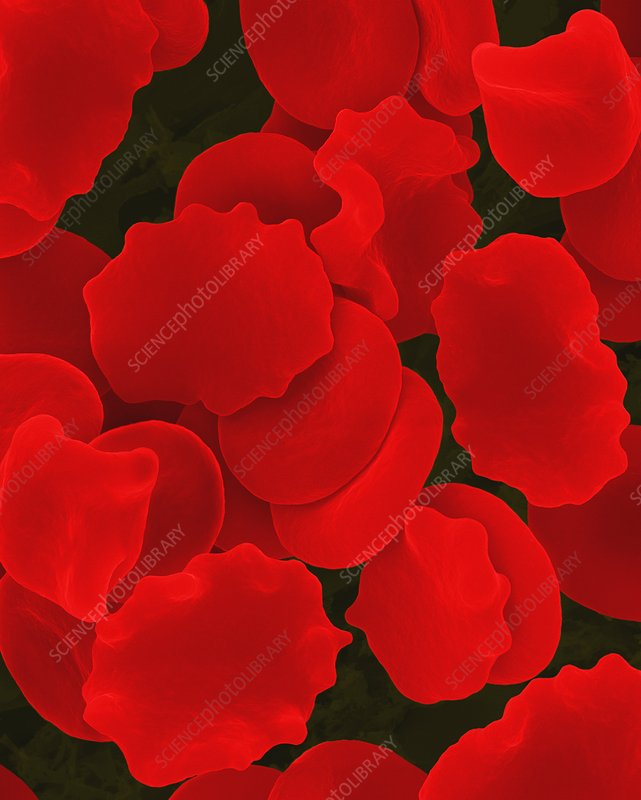 Red blood cells in hypertonic solution, SEM