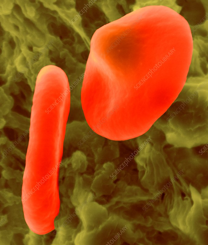 Red blood cell with the malaria parasite, SEM