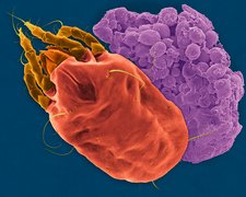 Dust mite and faecal pellet, SEM