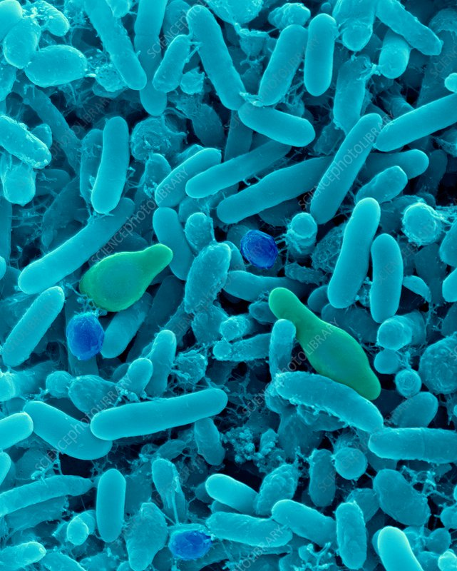 Alicyclobacillus: Thermophilic Acidophilic Bacilli