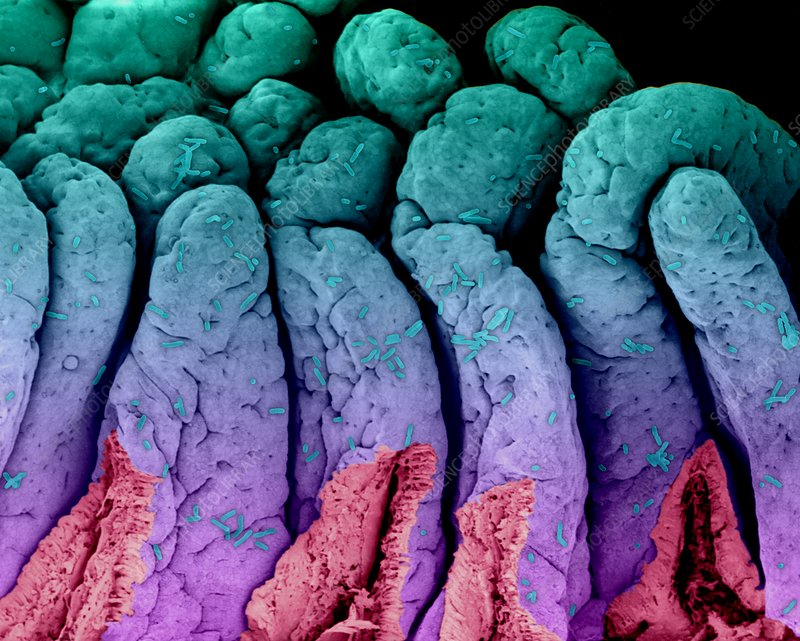 E. coli on the small intestine, SEM