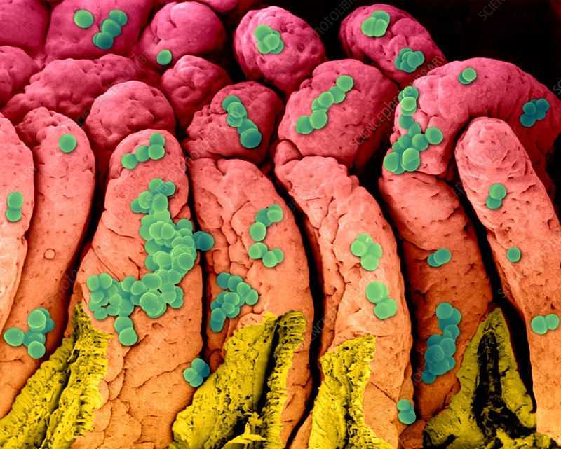 Staphylococcus aureus on the small intestine, SEM