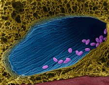 Bacillus anthracis spores in lung, SEM
