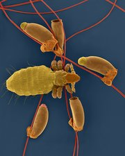 Long-nosed cattle louse and egg cases, SEM
