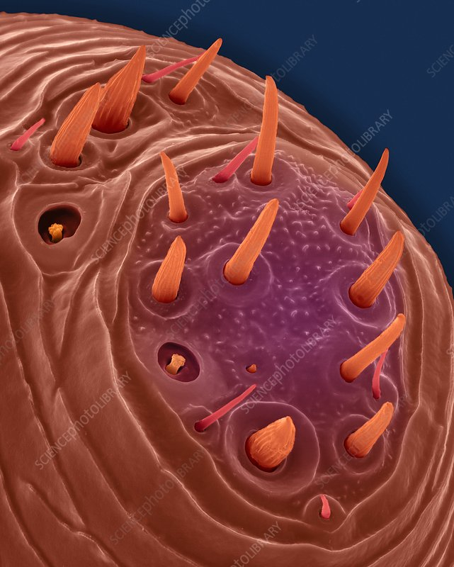 Chicken body louse antenna tip, SEM