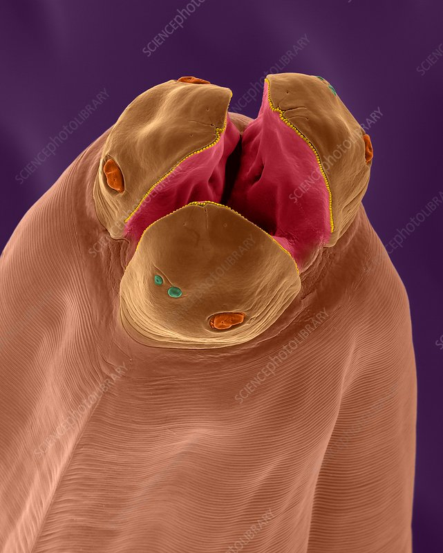 Dog intestinal roundworm (Toxocara canis), SEM
