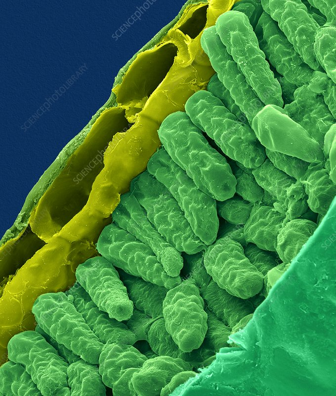 Gardenia leaf cross section (Gardenia sp.), SEM