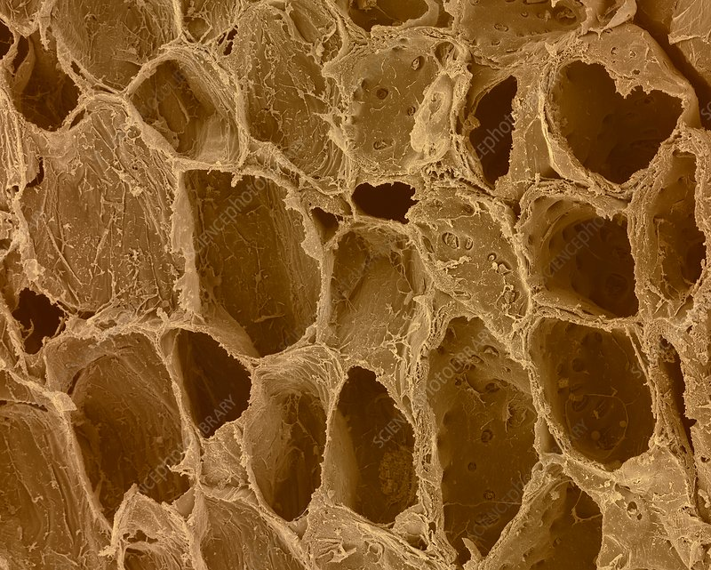 Plant parenchyma cellulose walls, SEM