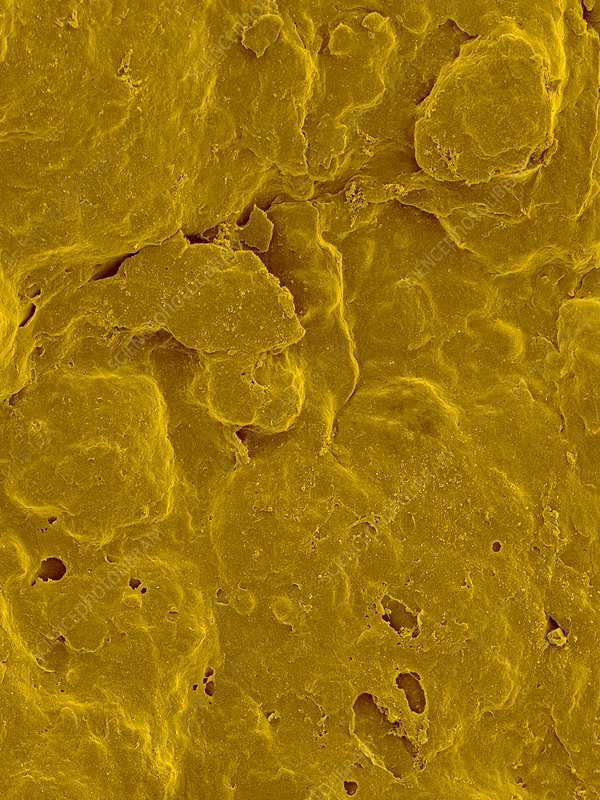 Lemon Peel Surface, SEM