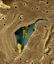 Pear sclereid or stone cell (Pyrus sp.), SEM