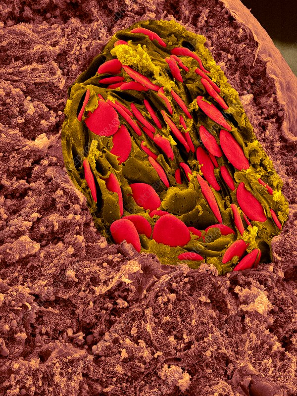 Frog blood in liver blood vessel, SEM