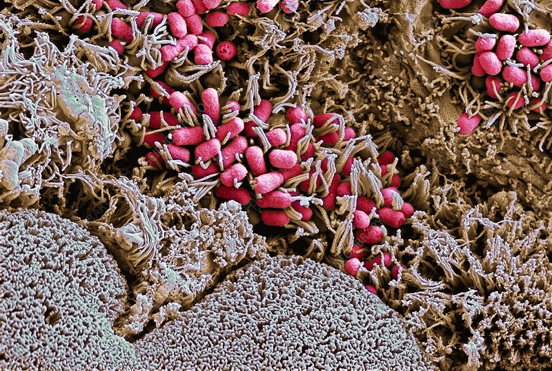 EHEC bacteria on small intestine tissue, SEM