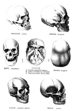 Skulls of criminals, 19th century
