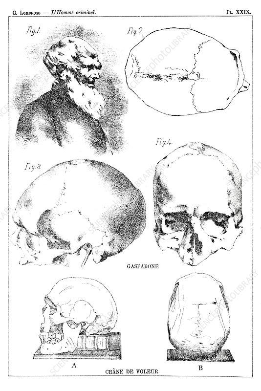 Skulls of criminals, 19th century