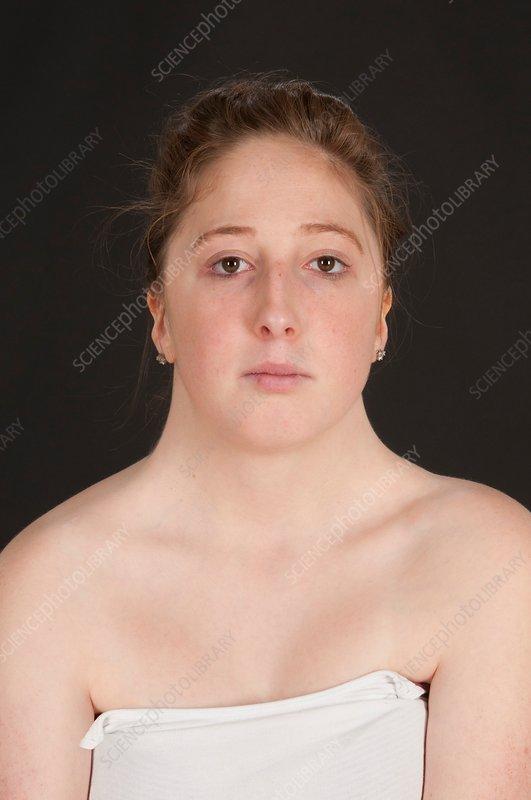 Turner Syndrome - Stock Image - C032  8633