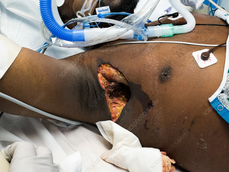 Axillary abscess in a septic shock patient