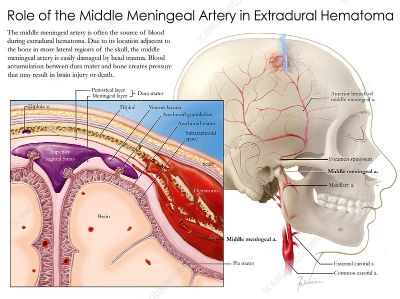 Middle meningeal artery and haematoma, illustration