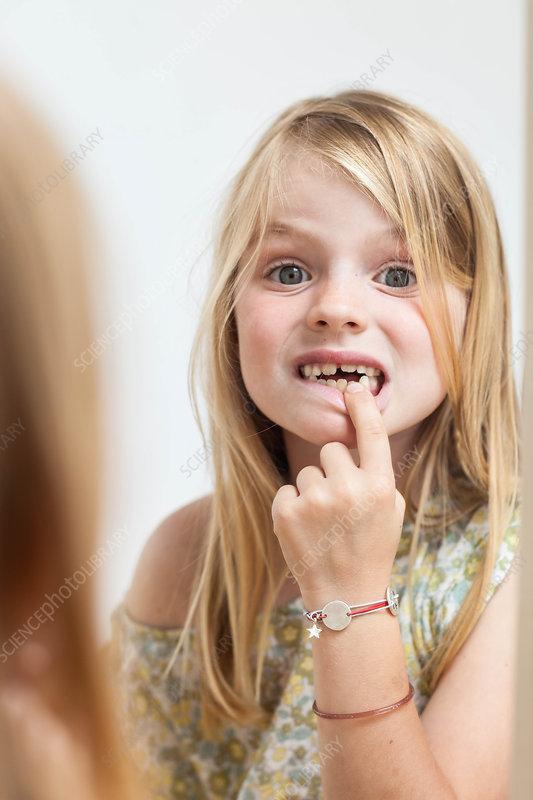 Child with milk teeth