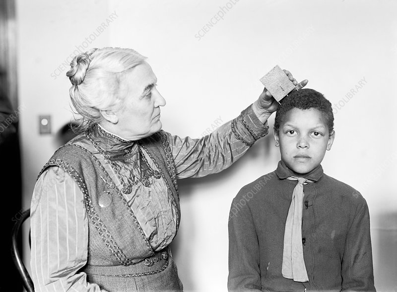 Doctor measuring skull curvature, 1914