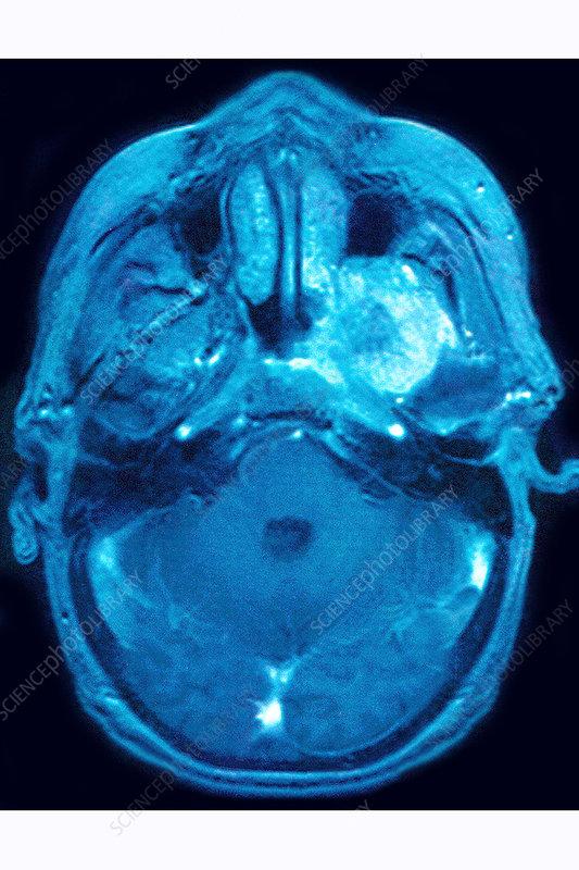 Neurinoma, MRI
