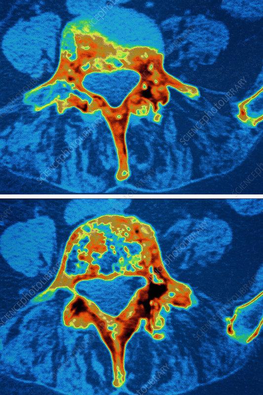 Paget's disease, MRI