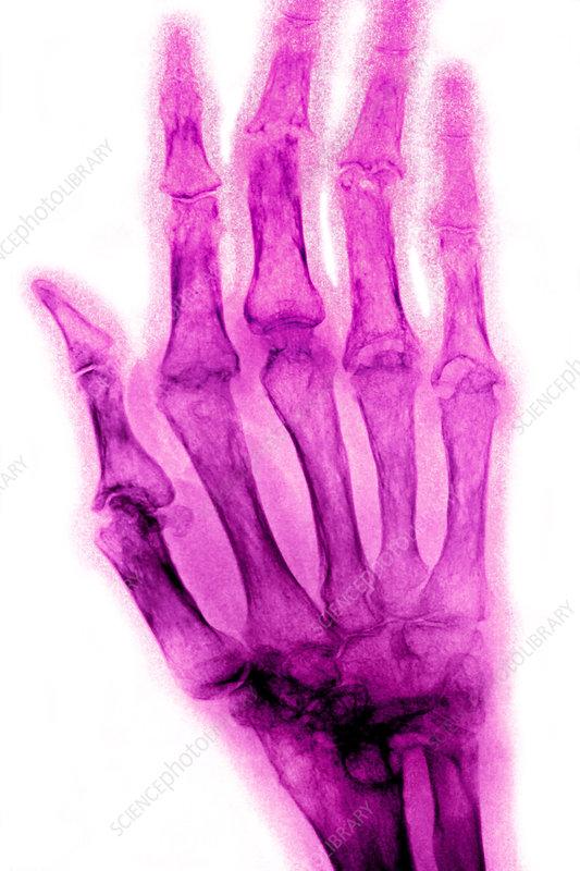 Rheumatoid arthritis, x-ray