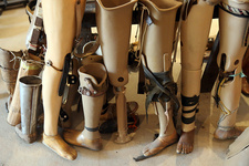 Various prostheses