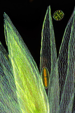 Desmids on sphagnum moss, light micrograph